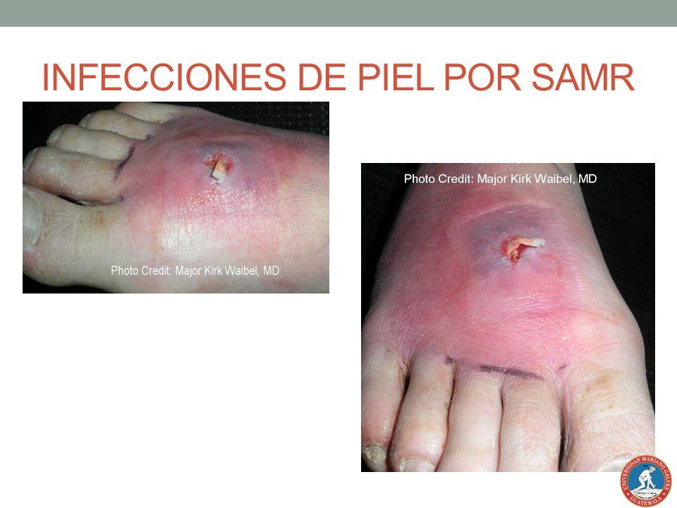 INFECCIONES DE PIEL POR SAMR