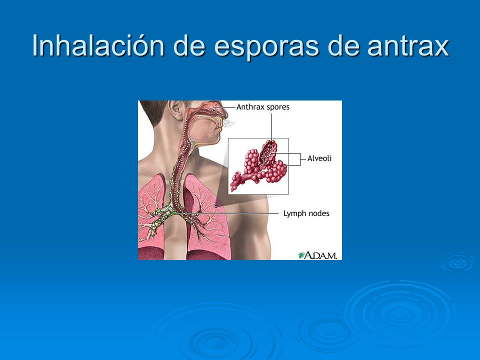 Inhalación de esporas de antrax