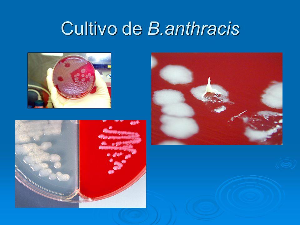 Cultivo de B.anthracis