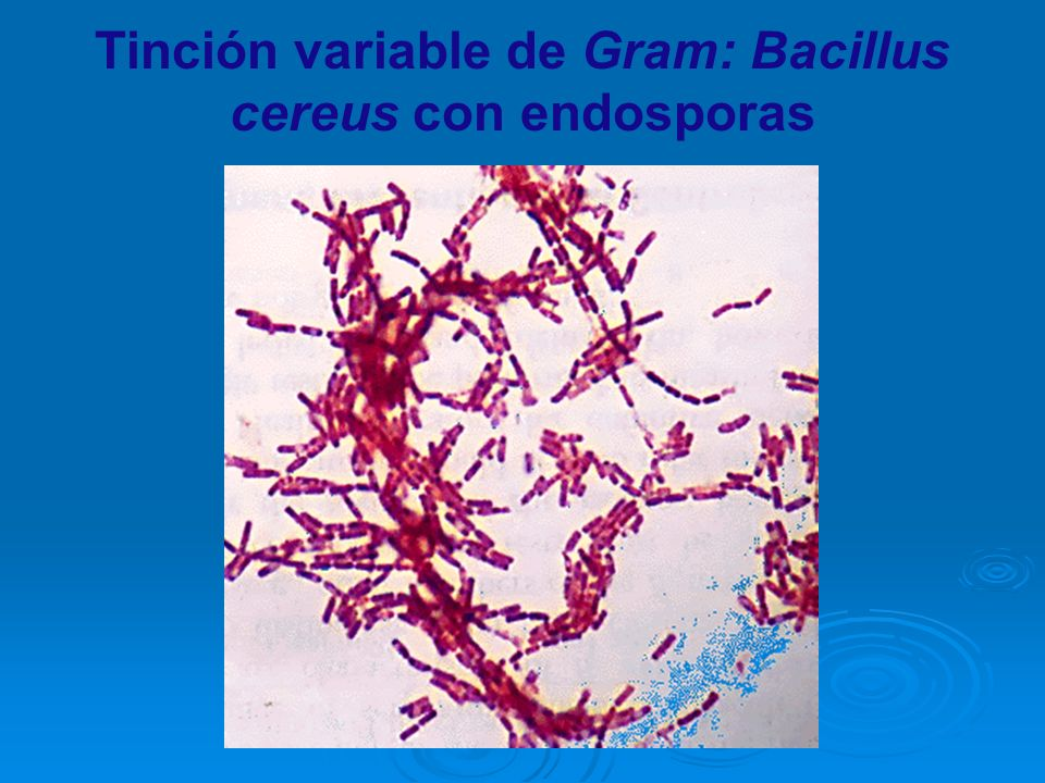 Tinción variable de Gram: Bacillus cereus con endosporas