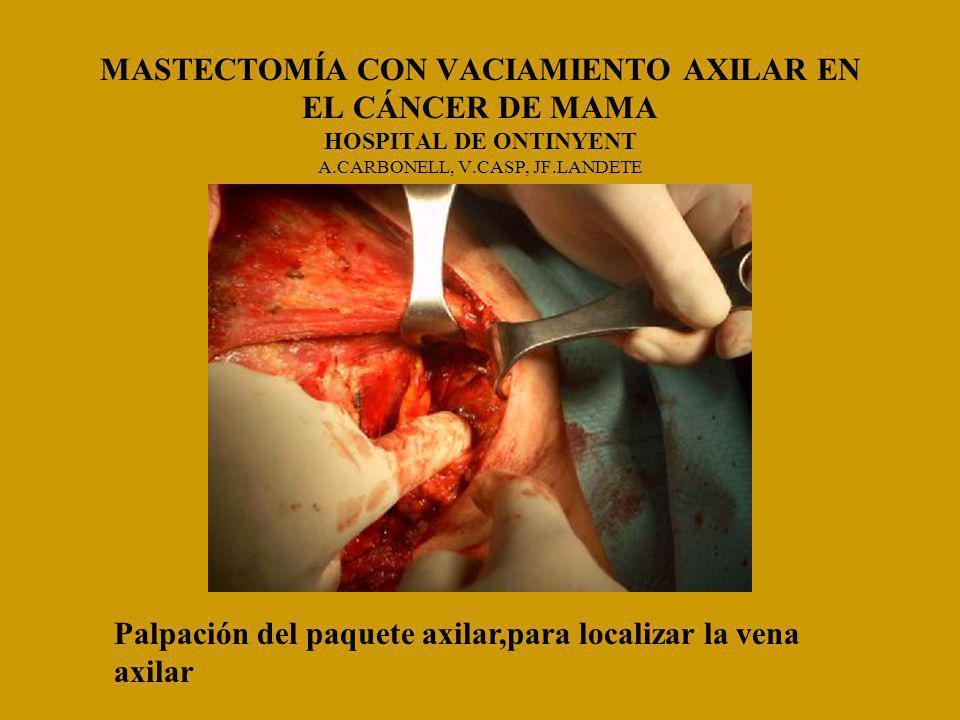 MASTECTOMÍA CON VACIAMIENTO AXILAR EN EL CÁNCER DE MAMA HOSPITAL DE ONTINYENT A.CARBONELL, V.CASP, JF.LANDETE