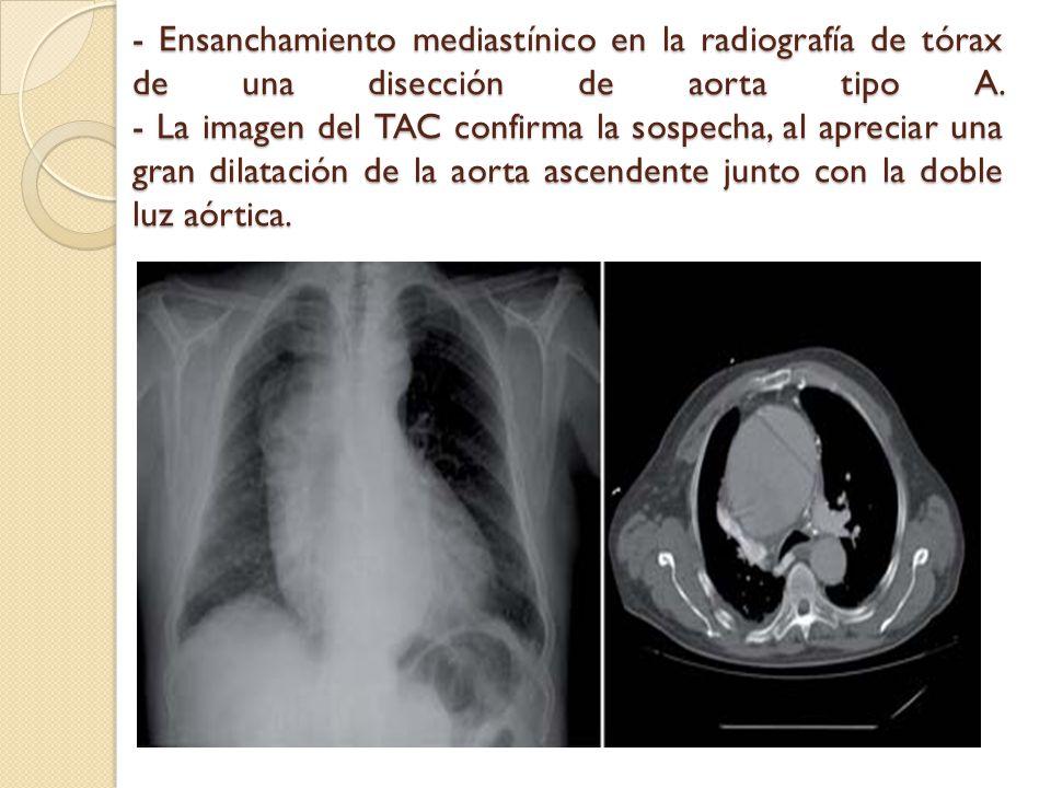 - Ensanchamiento mediastínico en la radiografía de tórax de una disección de aorta tipo A.