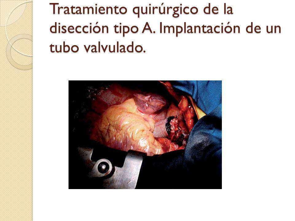 Tratamiento quirúrgico de la disección tipo A