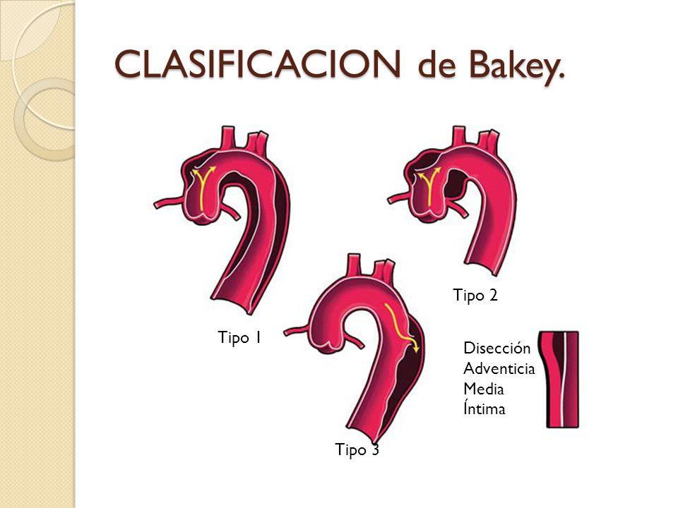 CLASIFICACION de Bakey.