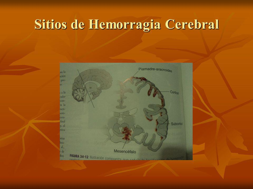 Sitios de Hemorragia Cerebral