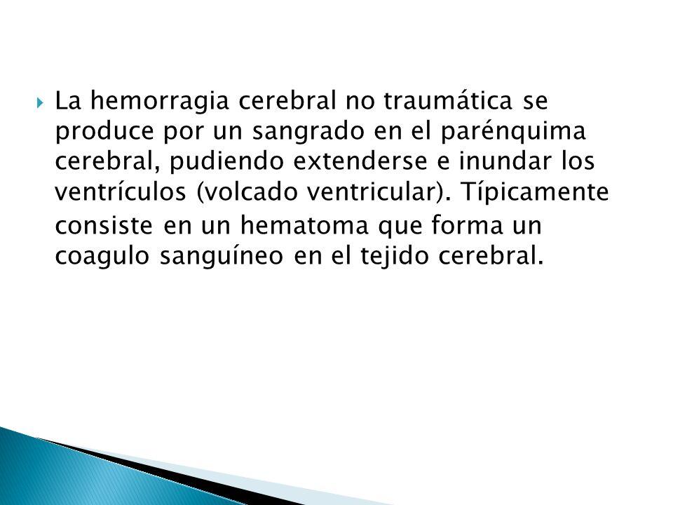 La hemorragia cerebral no traumática se produce por un sangrado en el parénquima cerebral, pudiendo extenderse e inundar los ventrículos (volcado ventricular). Típicamente
