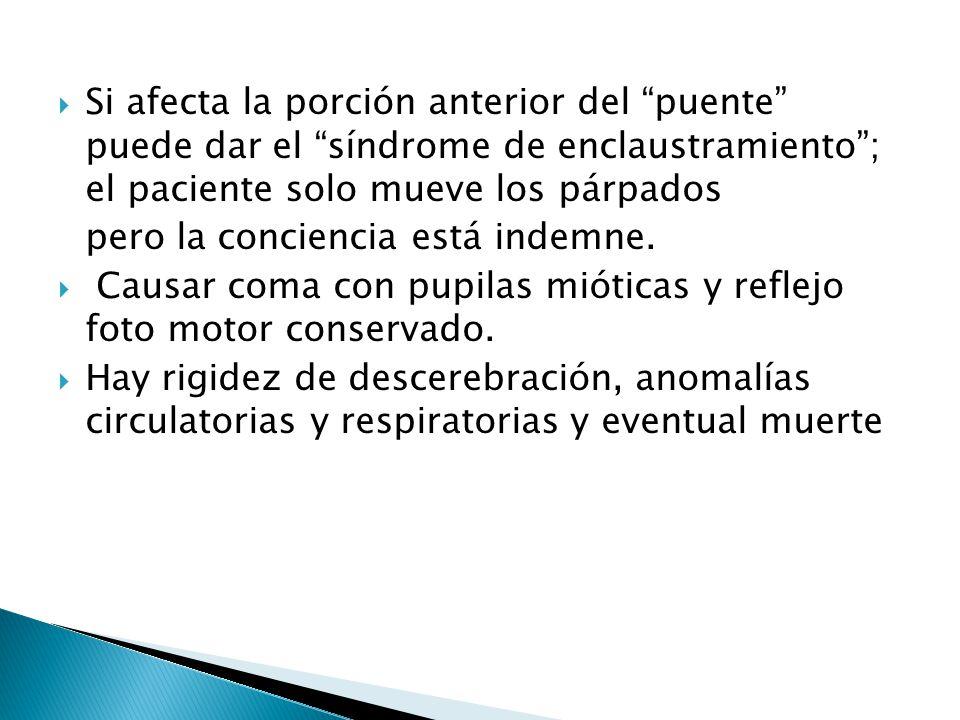 Si afecta la porción anterior del puente puede dar el síndrome de enclaustramiento ; el paciente solo mueve los párpados