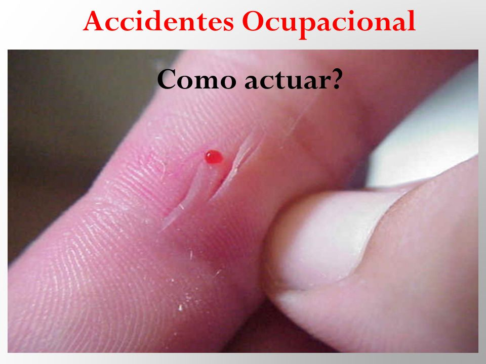 Accidentes Ocupacional