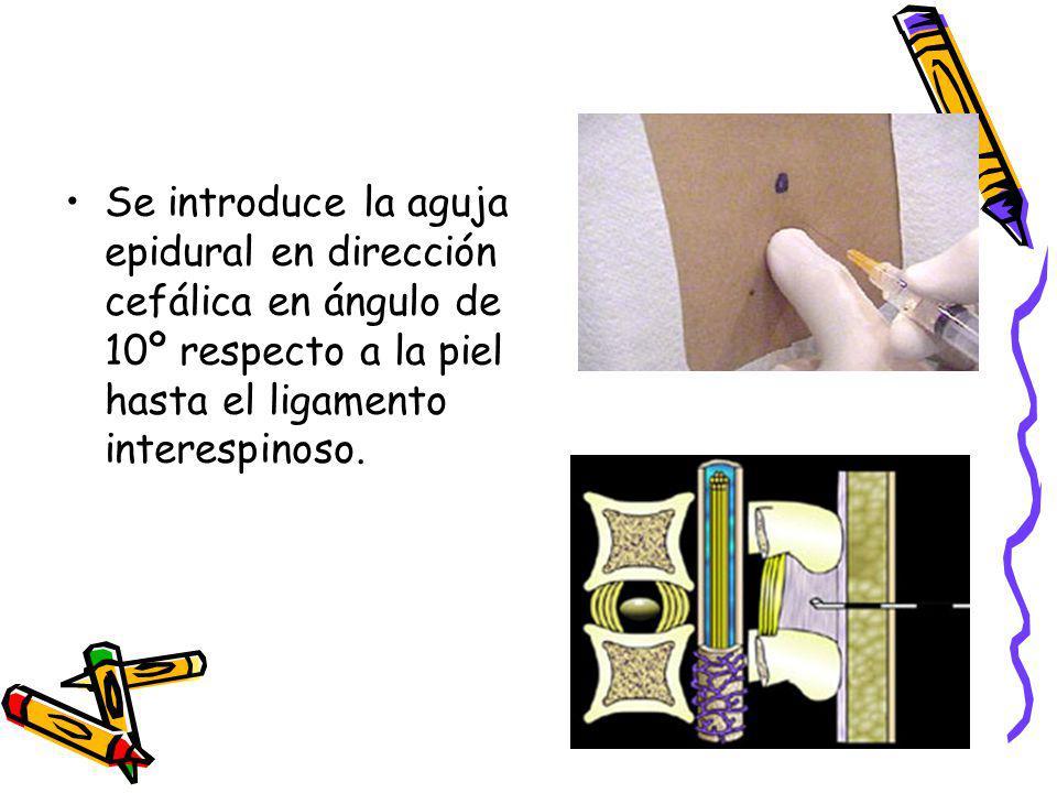 Se introduce la aguja epidural en dirección cefálica en ángulo de 10º respecto a la piel hasta el ligamento interespinoso.