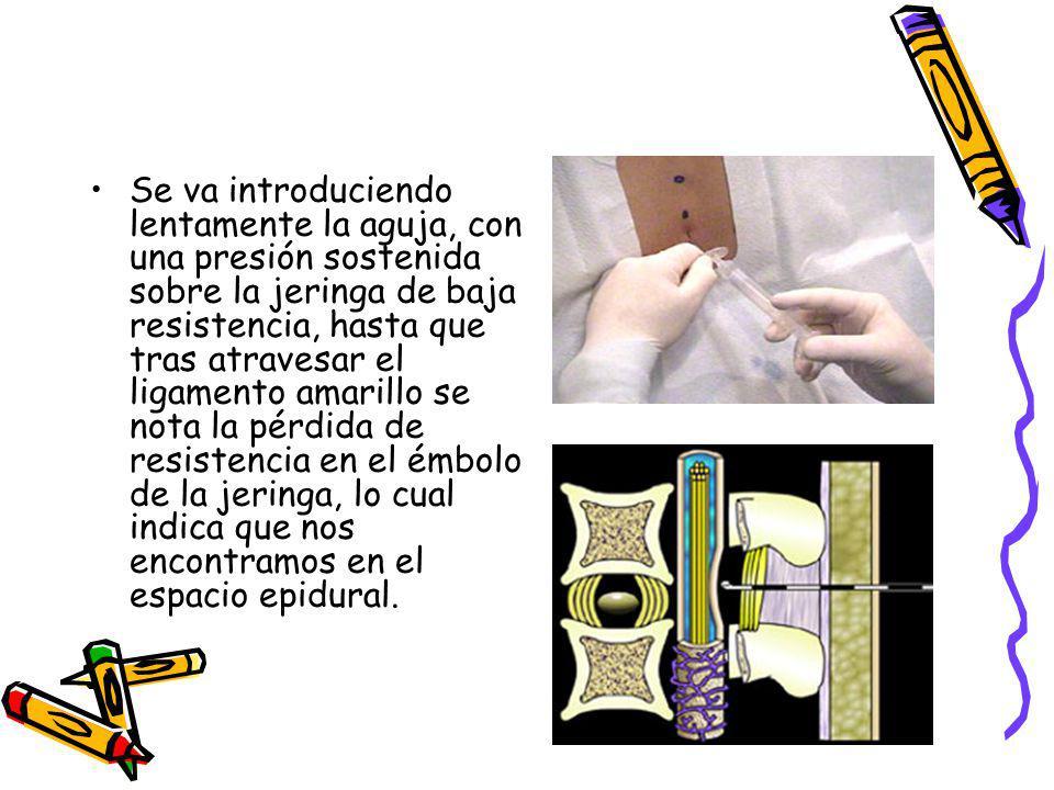 Se va introduciendo lentamente la aguja, con una presión sostenida sobre la jeringa de baja resistencia, hasta que tras atravesar el ligamento amarillo se nota la pérdida de resistencia en el émbolo de la jeringa, lo cual indica que nos encontramos en el espacio epidural.