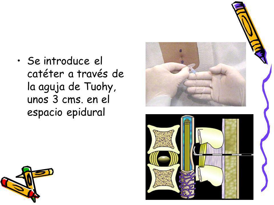 Se introduce el catéter a través de la aguja de Tuohy, unos 3 cms