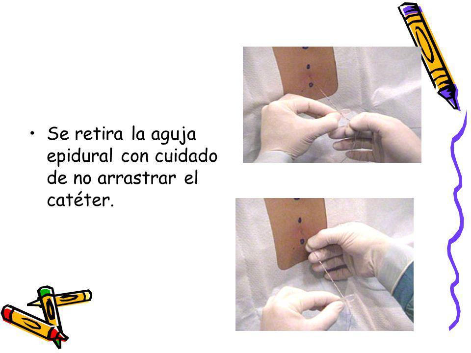 Se retira la aguja epidural con cuidado de no arrastrar el catéter.