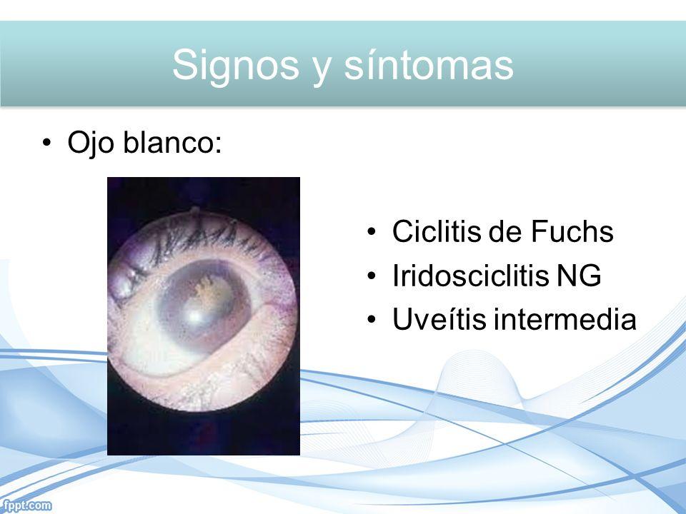 Signos y síntomas Signos y síntomas Ojo blanco: Ciclitis de Fuchs