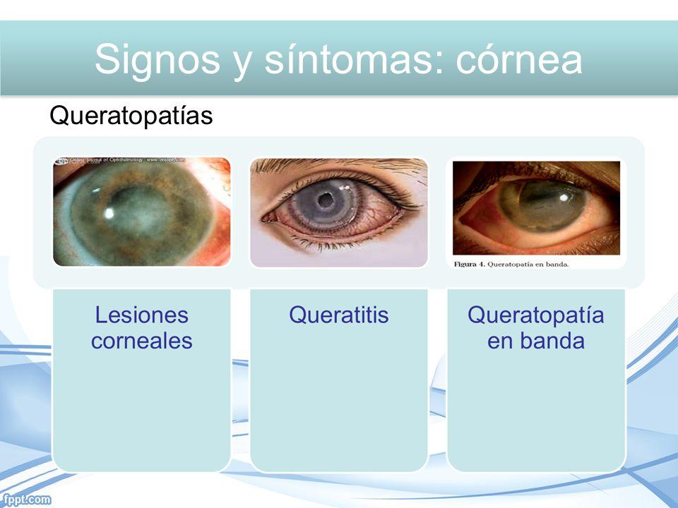 Signos y síntomas: Córnea