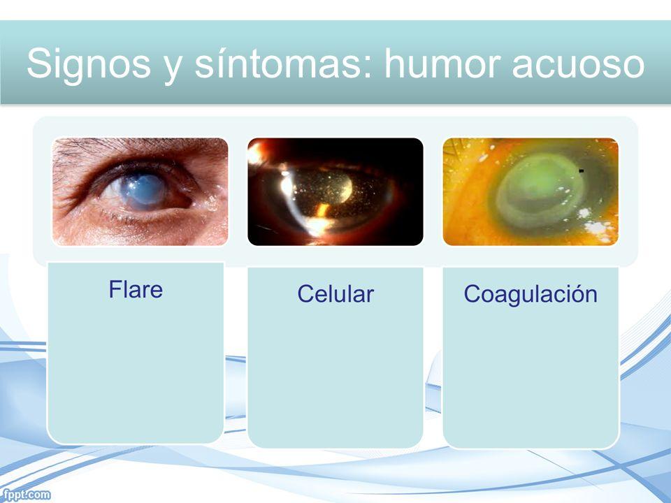 Signos y síntomas: Humor acuoso