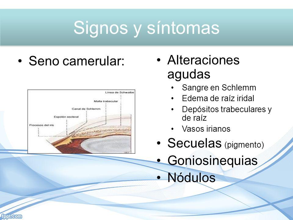 Signos y síntomas Signos y síntomas Seno camerular: