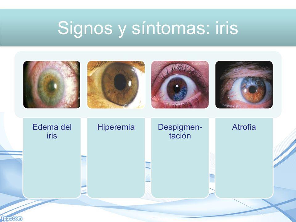 Signos y síntomas: Iris