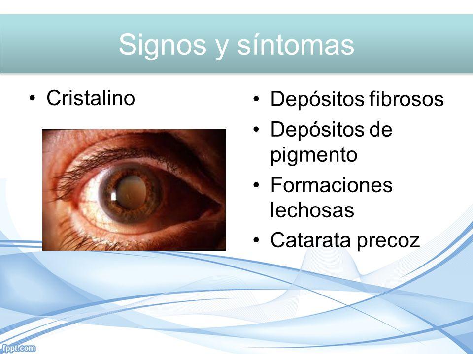 Signos y síntomas Signos y síntomas Cristalino Depósitos fibrosos