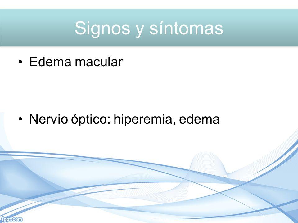 Signos y síntomas Signos y síntomas Edema macular