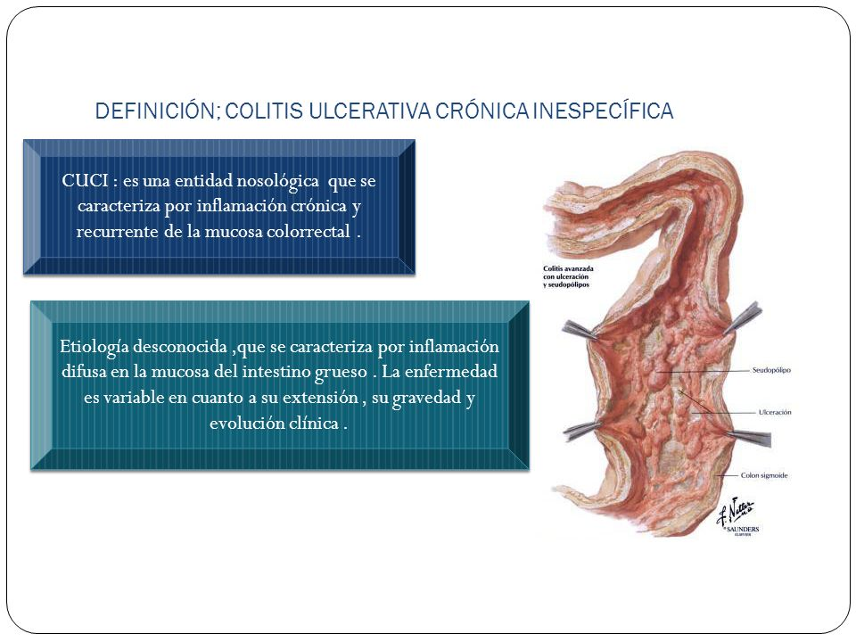DEFINICIÓN; COLITIS ULCERATIVA CRÓNICA INESPECÍFICA