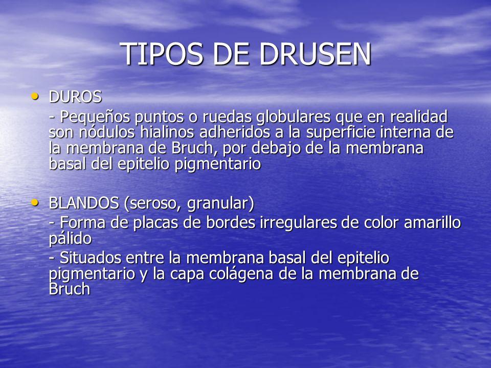TIPOS DE DRUSEN DUROS.