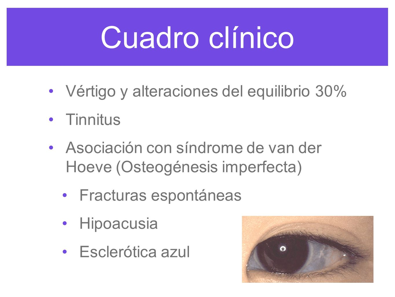 Cuadro clínico Vértigo y alteraciones del equilibrio 30% Tinnitus