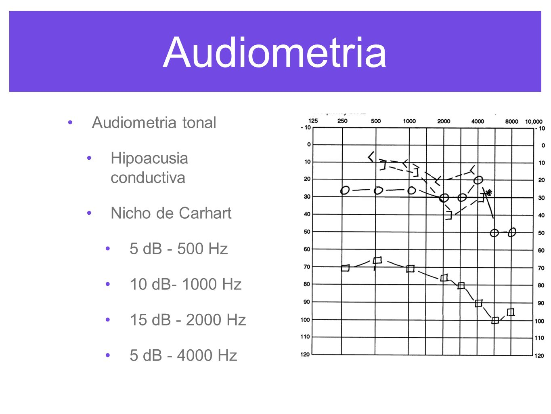 Audiometria Audiometria tonal Hipoacusia conductiva Nicho de Carhart