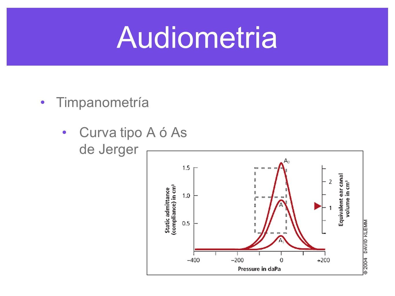 Audiometria Timpanometría Curva tipo A ó As de Jerger
