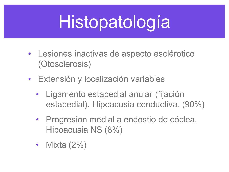 Histopatología Lesiones inactivas de aspecto esclérotico (Otosclerosis) Extensión y localización variables.