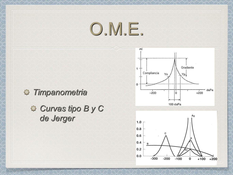 O.M.E. Timpanometria Curvas tipo B y C de Jerger
