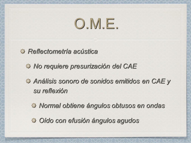 O.M.E. Reflectometría acústica No requiere presurización del CAE
