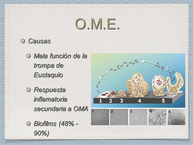 O.M.E. Causas Mala función de la trompa de Eustaquio