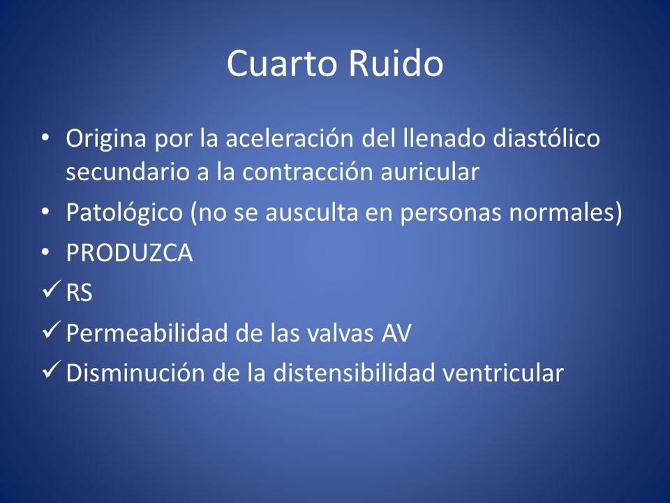 Cuarto Ruido Origina por la aceleración del llenado diastólico secundario a la contracción auricular.
