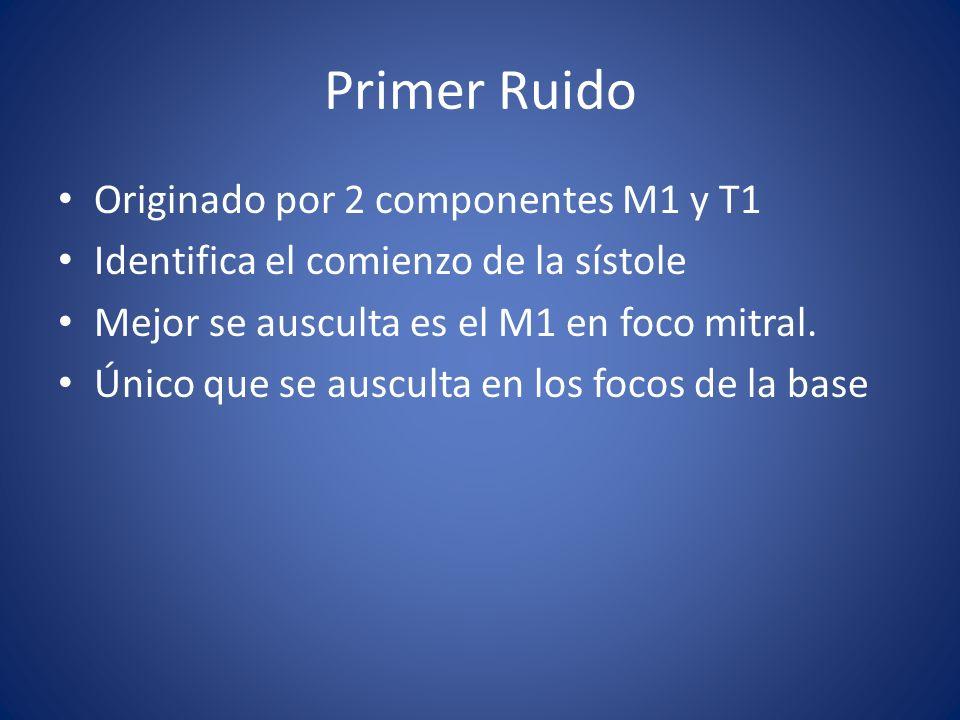 Primer Ruido Originado por 2 componentes M1 y T1