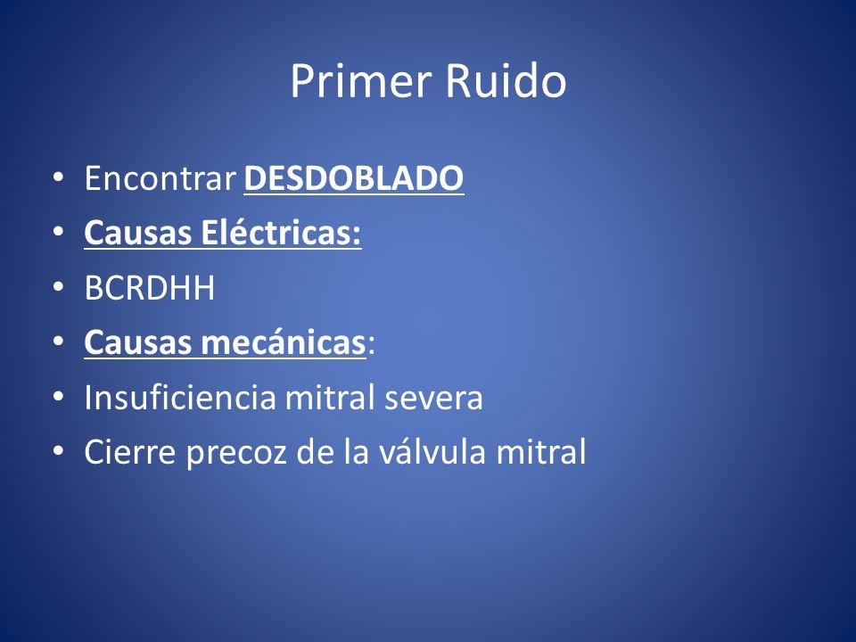 Primer Ruido Encontrar DESDOBLADO Causas Eléctricas: BCRDHH