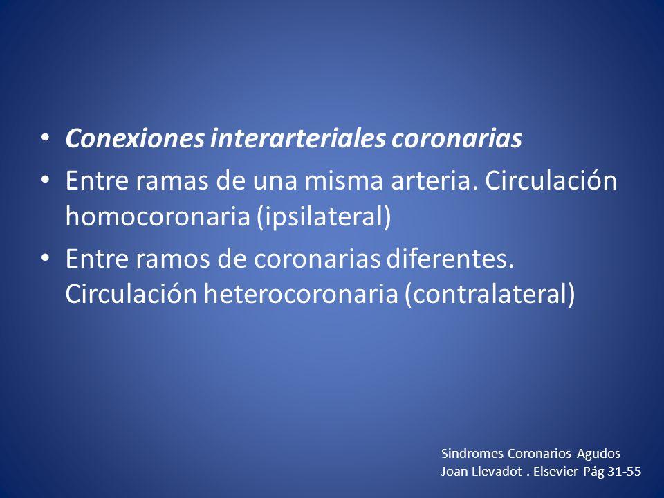 Conexiones interarteriales coronarias