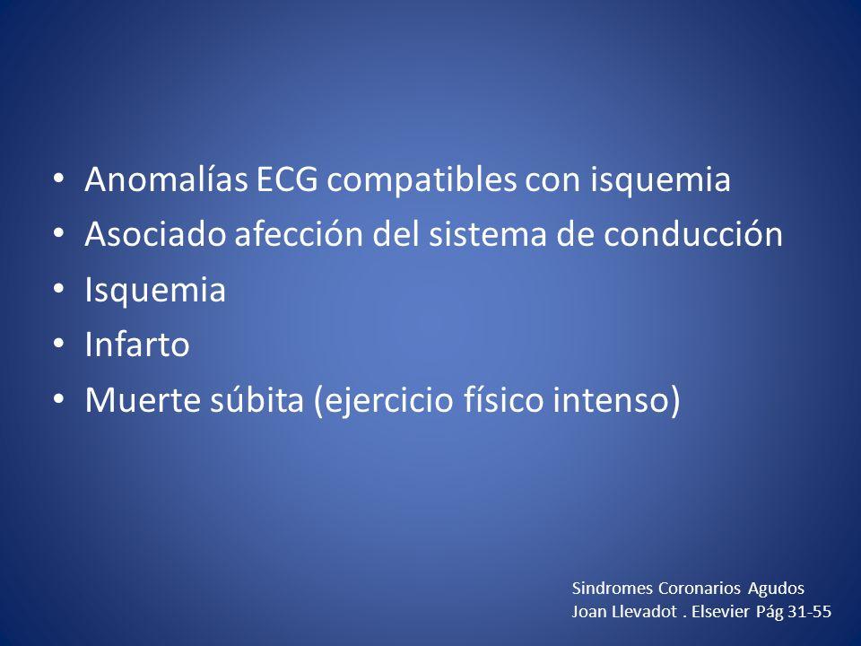 Anomalías ECG compatibles con isquemia