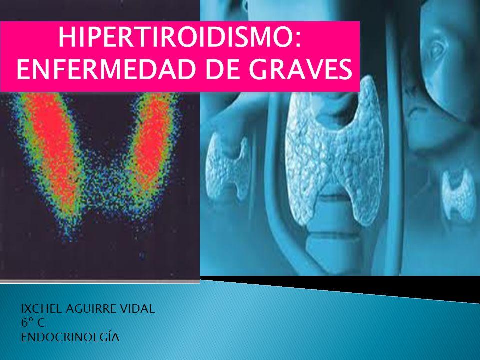 HIPERTIROIDISMO: ENFERMEDAD DE GRAVES