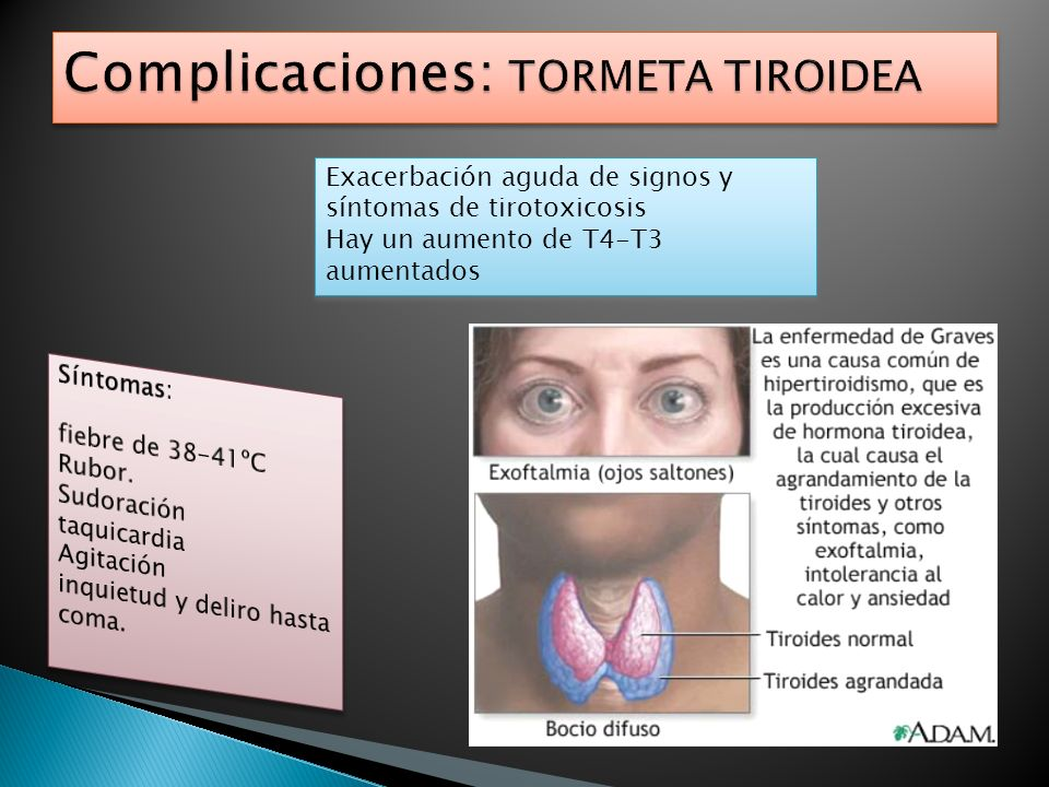 Complicaciones: TORMETA TIROIDEA