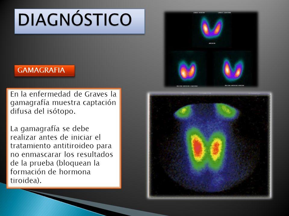 DIAGNÓSTICO GAMAGRAFIA