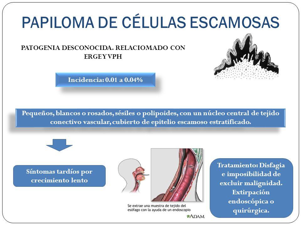 PAPILOMA DE CÉLULAS ESCAMOSAS