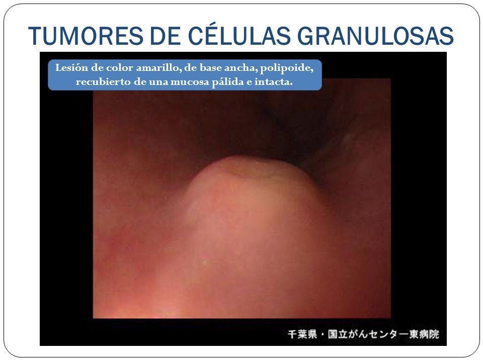 TUMORES DE CÉLULAS GRANULOSAS