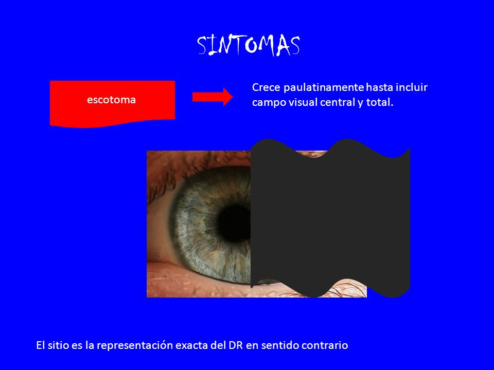 SINTOMAS Crece paulatinamente hasta incluir campo visual central y total. escotoma.