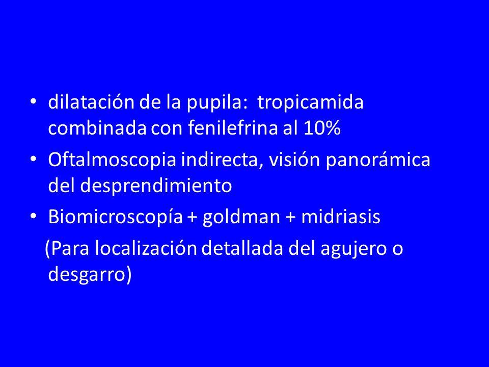 dilatación de la pupila: tropicamida combinada con fenilefrina al 10%