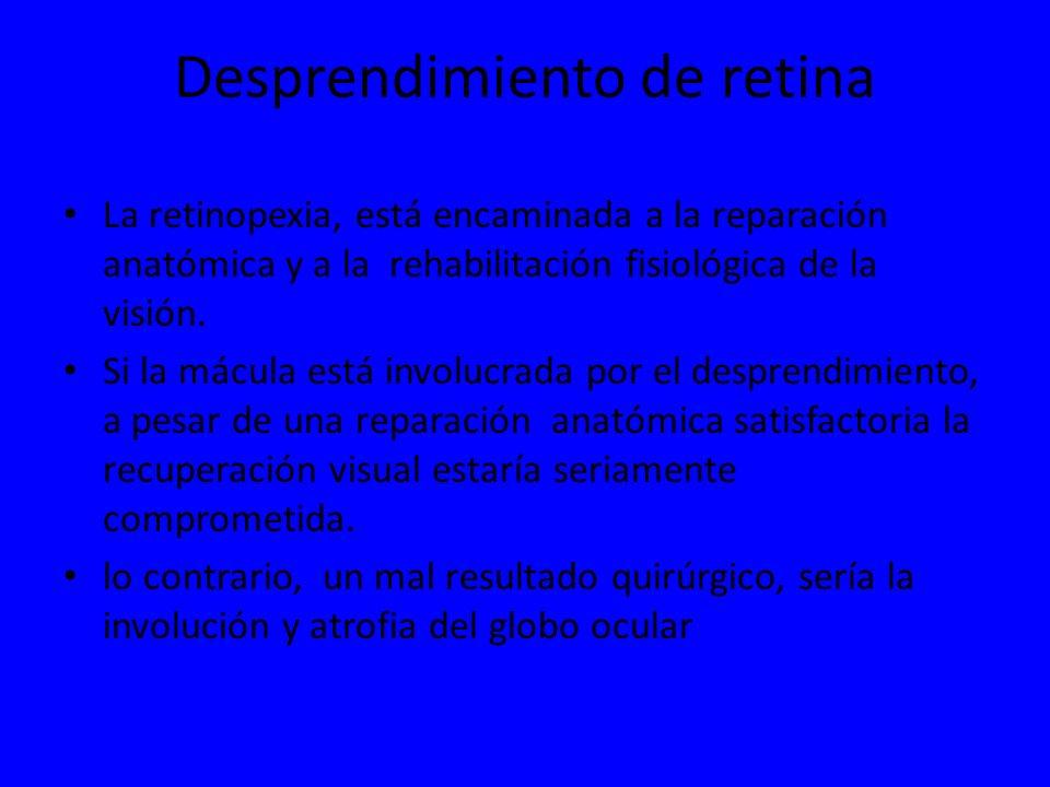 Desprendimiento de retina