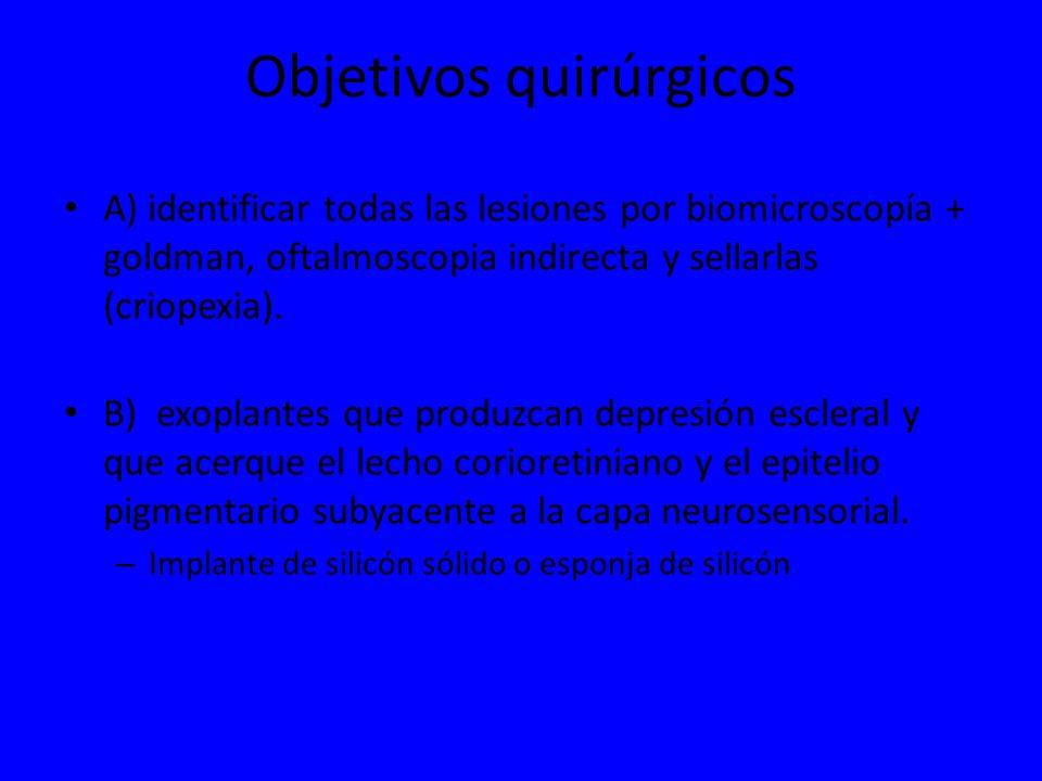 Objetivos quirúrgicos