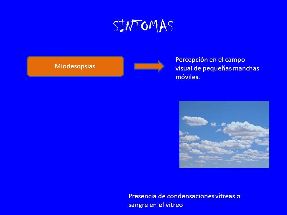 SINTOMAS Percepción en el campo visual de pequeñas manchas móviles.