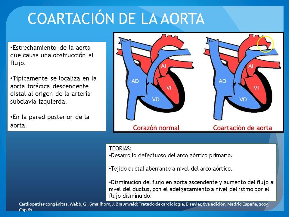 COARTACIÓN DE LA AORTA Estrechamiento de la aorta que causa una obstrucción al flujo.