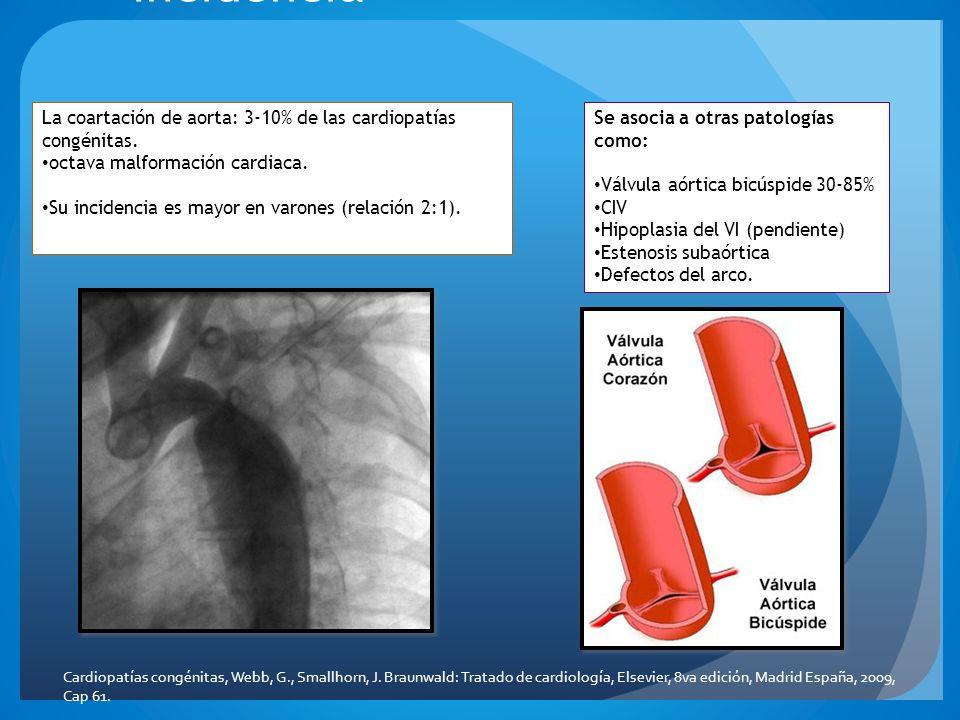Incidencia La coartación de aorta: 3-10% de las cardiopatías congénitas. octava malformación cardiaca.
