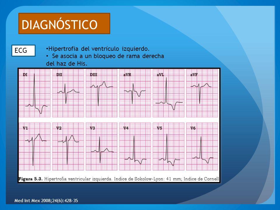 DIAGNÓSTICO ECG Hipertrofia del ventrículo izquierdo.